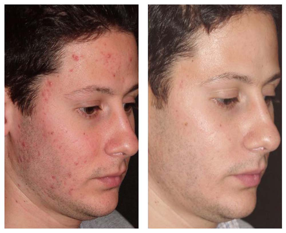 acne-face-before-and-after-i3