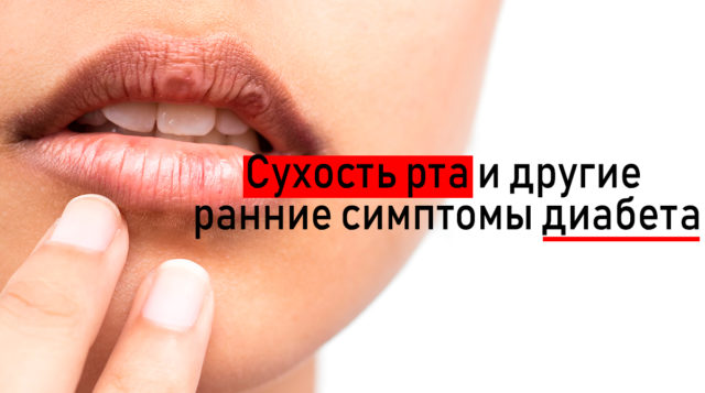 dry-mouth-syndrome-min